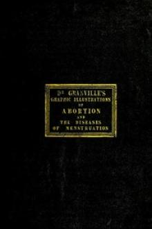 Graphic illustrations of abortion and the diseases of menstruation by A. B. Granville
