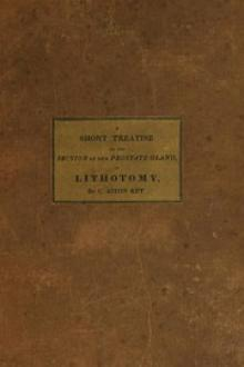 A Short Treatise on the Section of the Prostate Gland in Lithotomy by Charles Aston Key